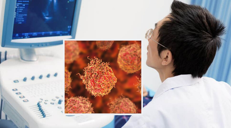 Breakthrough Prostate Cancer Treatment Uses Ultrasound Waves To Eliminate Tumors
