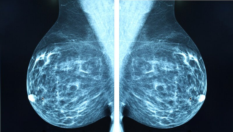 Surgeons Admit That Mammograms for Breast Cancer Screening Are Outdated and Harmful
