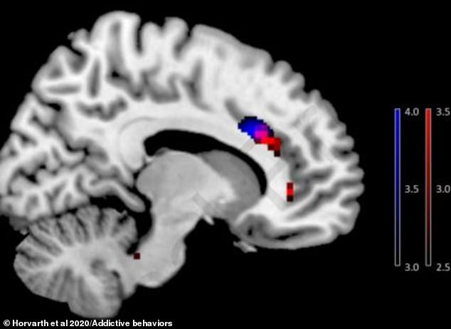 How smartphone addiction changes your BRAIN: Scans reveal how grey matter of tech addicts physically changes shape and size in a similar way to drug users