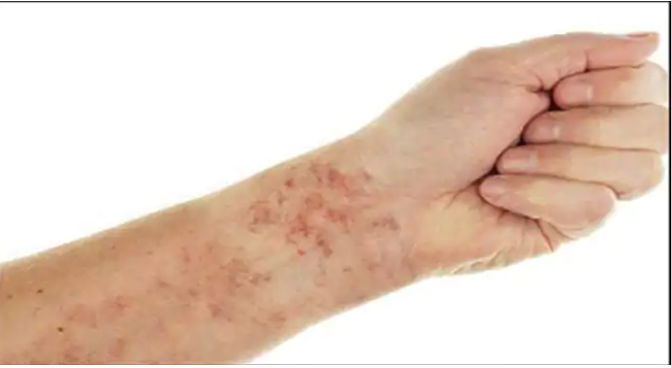 36 COVID-19 vaccine recipients develop rare blood disorder after getting Moderna, Pfizer shots